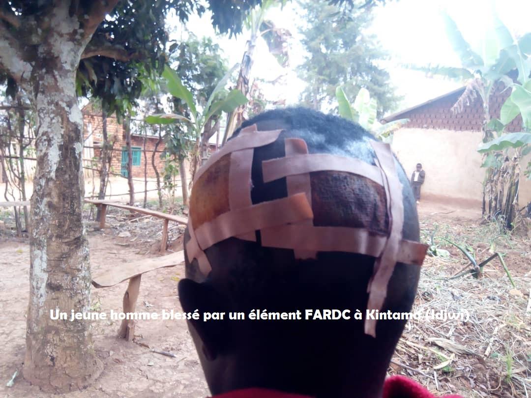 Idjwi : Un militaire FARDC déchaine sa colère contre un jeune homme à Kintama